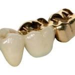 gold teeth best
