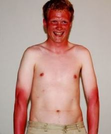 etcguy bad suntan